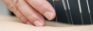 Gunn Intramuscular Stimulation-IMS (Dry Needling)